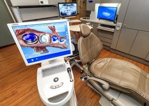 CEREC Same Day Crowns Dentist Grand Rapids