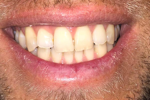 Tooth Whitening Dentist Grand Rapids