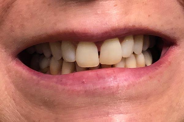 Teeth Whitening Dentist Grand Rapids